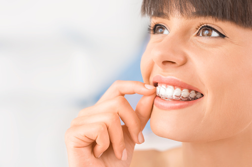Clear Invisalign aligners at Thurston Oaks Dental